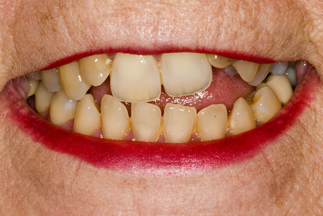 Dental Veneers Before Image