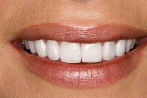 Cosmetic Dentistry Results - Mouth after dental veneers, bleaching and gum lift.