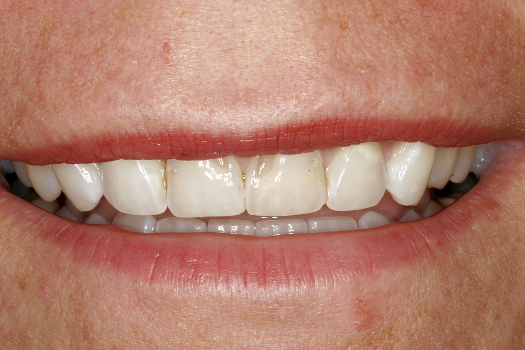 Mouth before porcelain veneers and teeth whitening - Dallas